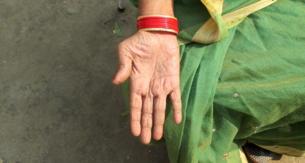 A resident of Ekawana Rajpur village has lesions on her hand due to arsenic poisoning. (Photo by Tarun Kanti Bose)