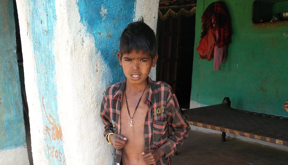 Ramswaroop of Badahar village in Bidisha district was diagnosed with tuberculosis at the age of 7. (Photo by Abhijeet Jadhav)