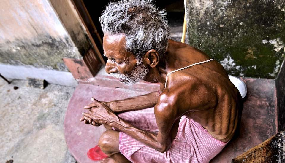 Fluorosis has crippled 68-year-old Himanshu Chakarbarty, a resident of high fluoride-affected Brahman Tola in Dhanbad district. (Photo by Eklavya Prasad)