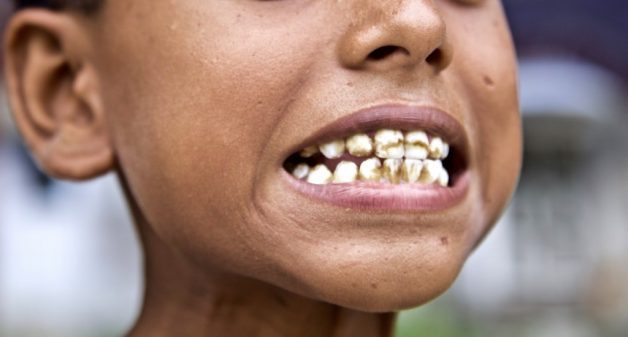 It is hard to find a child above 6-7 years age in Brahman Tola who does not have strained teeth due to dental fluorosis. Most children cannot touch their toes, which is a sign of early stage of skeletal fluorosis. (Photo by Eklavya Prasad)